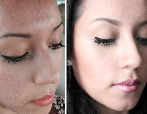 imagen del antes y despues